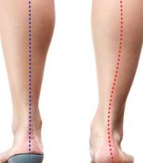 How orthotics help alignment - Rose City Wellness